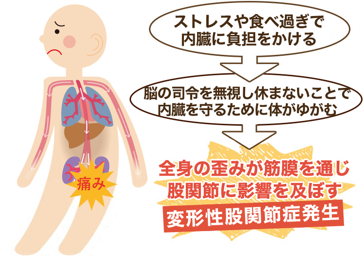 内臓疲労が原因の変形性股関節症