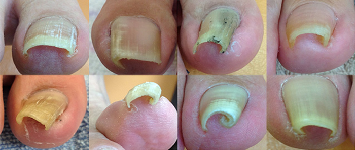 どの様な状態の爪でも対応可能!あなたの巻き爪はどのタイプ?