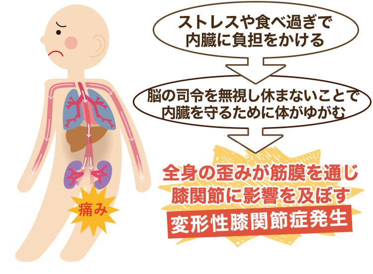内臓疲労が原因の変形性膝関節症