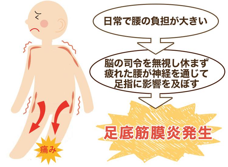 腰の疲れが原因の足底筋膜炎