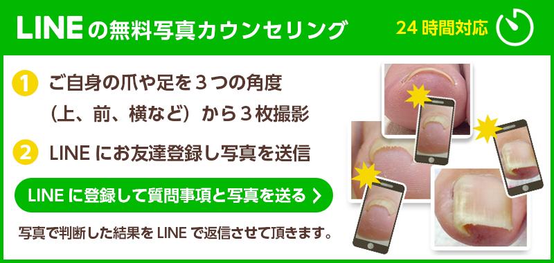 LINEの無料カウンセリング