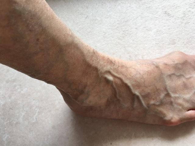 ふくらはぎや膝裏の気になる下肢静脈瘤について