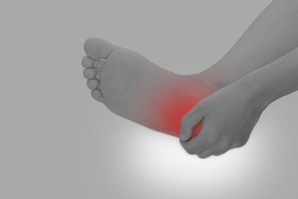 アキレス腱が痛い。かかとが腫れて痛い。それもしかすると、アキレス腱付着部症かも?
