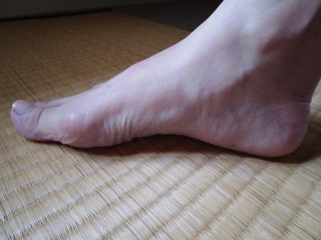 歩くと足が痛くなる! それは偏平足によるものかもしれません。